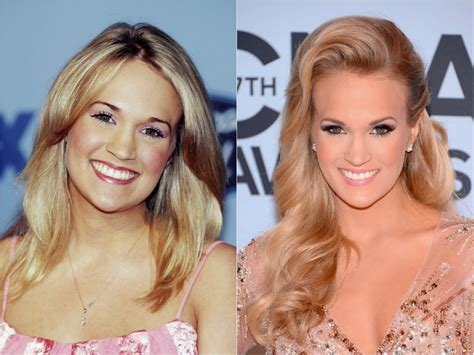 Celebrity Carrie Underwood  Plastic Surgery, Photos, Video