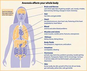 Eating Disorders, Anorexia Nervosa – SIGNS, SYMPTOMS, CA ...