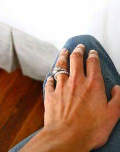 cure for wedding ring rash With itchy wedding ring finger