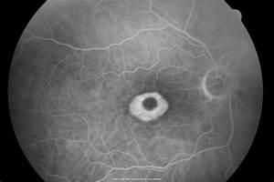 Plaquenil Toxicity - Bulls Eye Maculopathy - Plaquenil ...