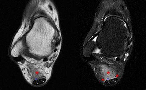 achilles tendon pathology radsource