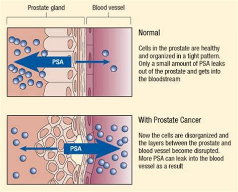 specific antigen test range specific antigen psa test causes symptoms treatment specific antigen psa