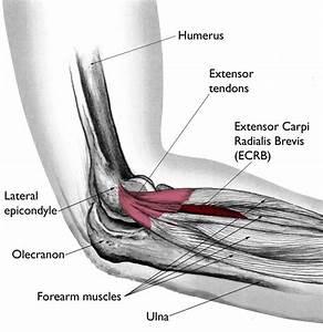 Tennis Elbow  Lateral Epicondylitis  - Orthoinfo
