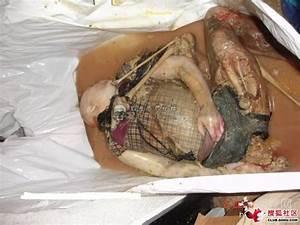 少女浴室自杀二十天的图片(3)-靓女屋