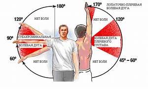 Боль в плечевом суставе левой руки при поднятии руки в сторону
