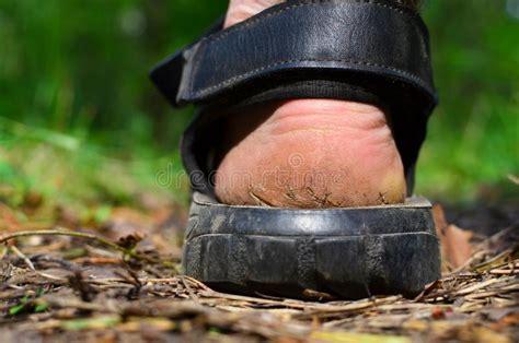 callus  foot stock photo image  callus space