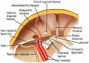 Best 25+ Hernia inguinal ideas on Pinterest   Very funny ...