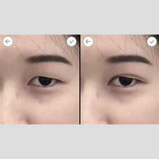Why Double Eyelid Surgery Is On The Rise In Asia Rising Incomes And Acceptance, And Star Power
