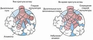 Остаточные явления после лечения простатита