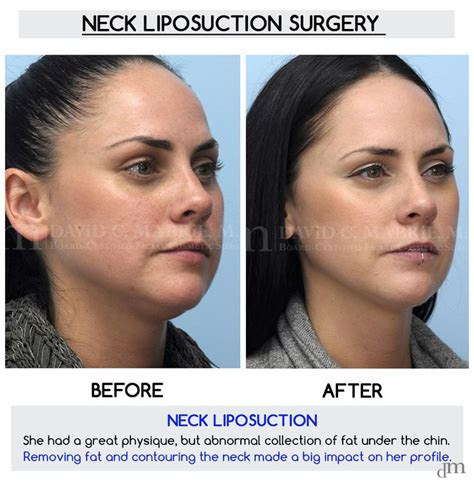 Excellent Surgical Neck Liposuction Results By Dr David