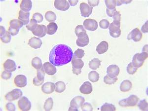 What Are Lymphocytes  Types  Levels  Ranges  And Functions