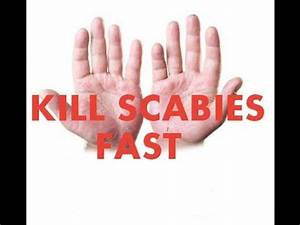 Scabies Home Treatment Tricks Review ( Kill Scabies Fast