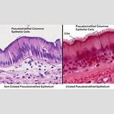 Pseudostratified Columnar Epithelial Tissue | 350 x 197 png 179kB