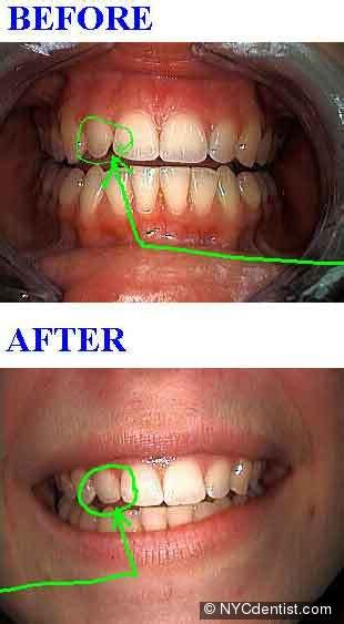 bonding gaps  teeth  high  cosmetic dentistry
