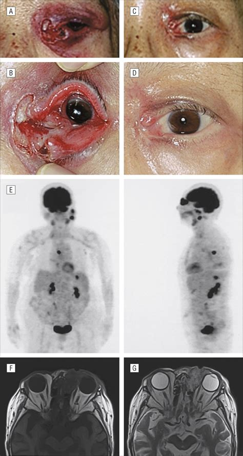 ocular involvement  epstein barr viruspositive diffuse