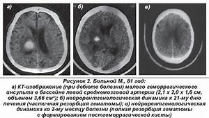 Особенности лечения геронтологических пациентов при гипертонической болезни