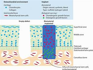 Llustration Of Cartilage Regeneration By Implantation Of