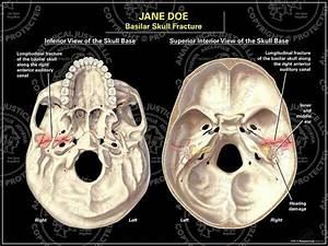 Basel Skull Fracture