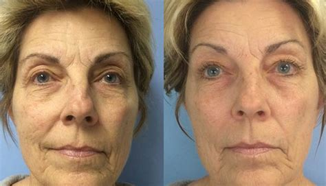 LED Light Therapy: Reduce Wrinkles, Clear Acne, Ridgewood