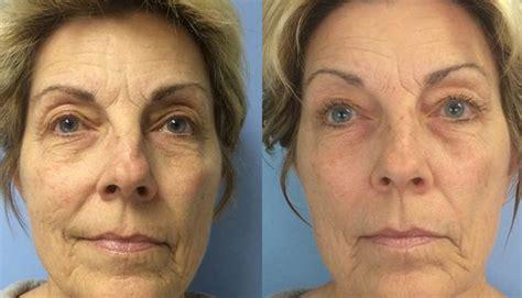 Anti-aging | BioPhotas