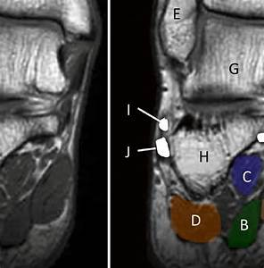 12 Coronal Mri Images Of The Foot  A Abductor Hallucis  B