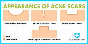How To Get Rid Of Acne Scars  A Step