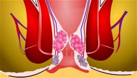 Rimedi Contro Emorroidi Interne Emorroidi Cure Naturali