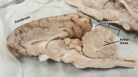 arbor vitae arbor vitae sheep brain www pixshark com images galleries with a bite