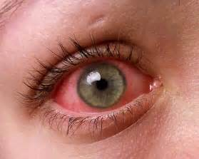 Pink Eye (Conjunctivitis) – Symptoms, Treatment, Pictures, Causes ... Conjunctivitis