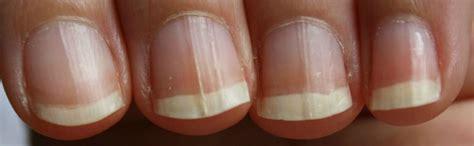 Symptome mycose pied