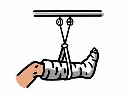 Clipart Broken Bone Cartoon Leg Cliparts Clip