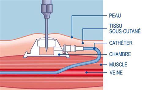 gripper chambre implantable les chambres à cathéter implantables ou dispositifs