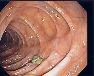 Screening Colonoscopy by Dr. David A. Kloss Colonoscopy