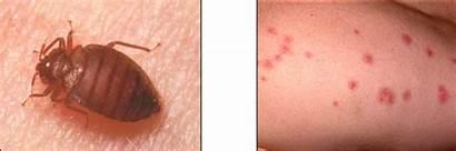 Cimex Lectularius Bites Blood Bugs Bed Sucking