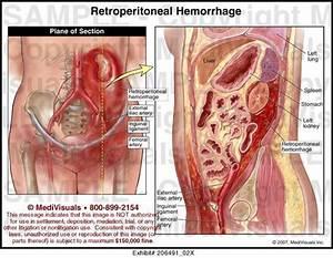Retroperitoneal Hematoma