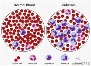 Discussing Acute Myeloid Leukemia: April 2015 Acute myelogenous leukemia