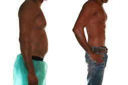 beispiel  vorher nachher bilder fettabsaugung ffm