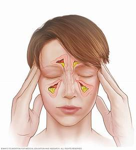 Acute Sinusitis - Symptoms And Causes