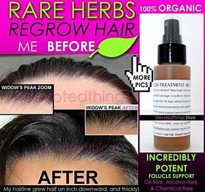 Organic Herbal Hair Loss Treatment Hair Regrowth Support