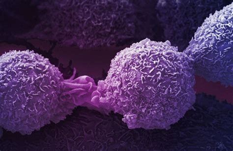 Oncology Scientist oncology novartis