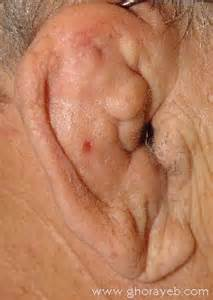 What Causes Beef Curtains by Sutured For A Living Cauliflower Ear