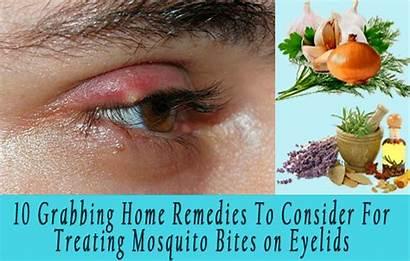 Bite Eyelid Mosquito Insect Swollen Eye Treat