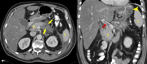 necrotizing pancreatitis radiology  st vincents