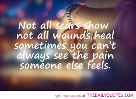 Relationship Quotes And Scars. Quotesgram