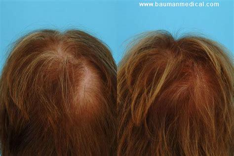 National Hair Loss Awareness Month - 5 Consumer Tips