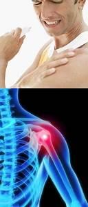 Лихорадка боли в суставах