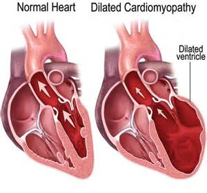 Dilated Cardiomyopathy - Cardiovascular diseases - ePharmaPedia  Dilated cardiomyopathy Cardiomyopathy
