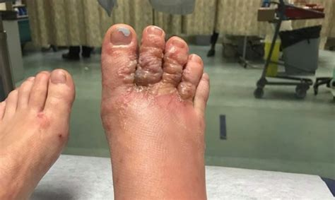 How to avoid a hookworm skin infection on your next