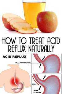 Treat Acid Reflux