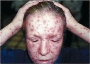 История болезни по псориаз
